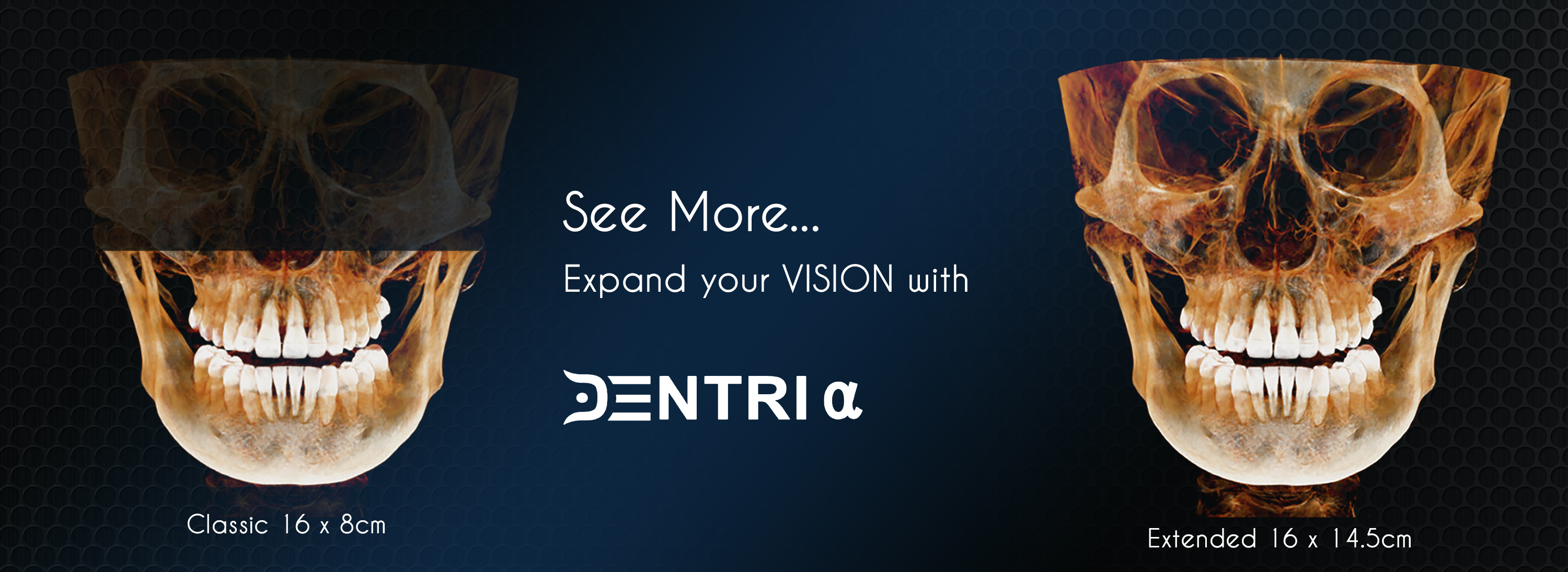 See more, expand your vision with Dentri. classic 16 x 8cm, extended 16 x 14.5cm